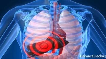 Skoré príznaky poškodenia pečene, ktoré takmer každý ignoruje