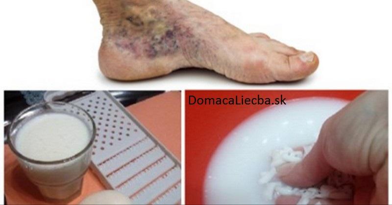 kŕčové žily a trombóza