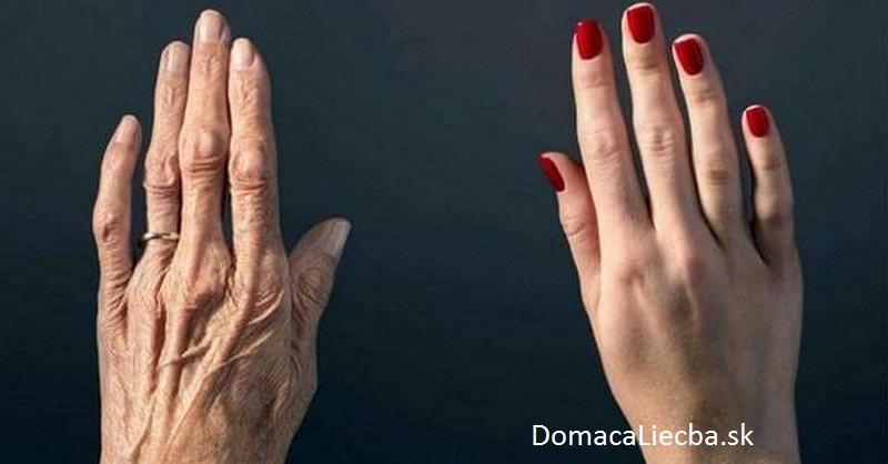 ruky a vek
