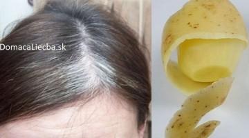Zbavte sa šedých vlasov s pomocou jedinej bežnej suroviny