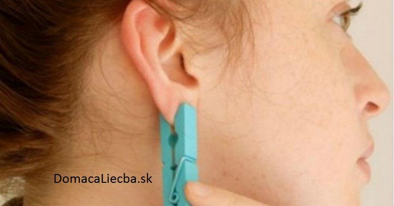 štipec na ucho