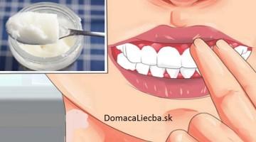 Ako vyliečiť zápal ďasien bez liekov či zubára