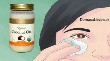 Uberte si roky: Budete potrebovať iba kokosový olej a 2 týždne času