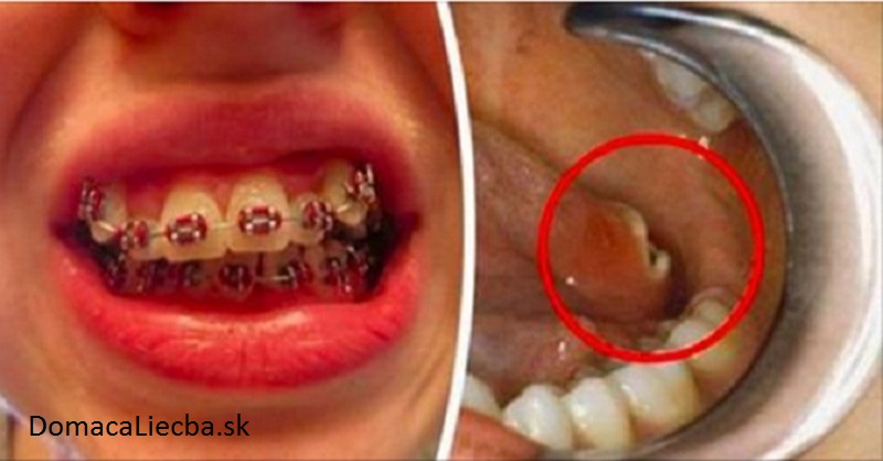 Ak dnes nosíte zubné strojčeky, o pár rokov sa vám môže stať niečo hrozné