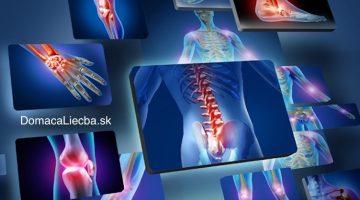 10 bežných potravín, ktoré zhoršujú bolesti kĺbov. Vyhýbajte sa im!