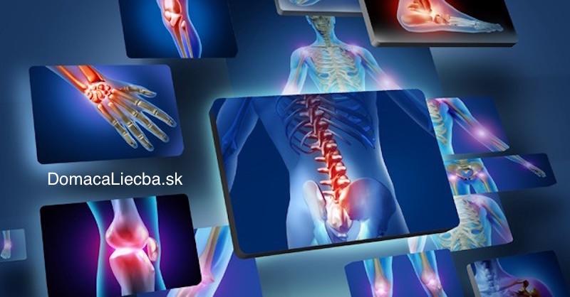 Ak máte problémy s kĺbmi, nejedzte týchto 10 potravín: Zhoršujú bolesti a zápaly