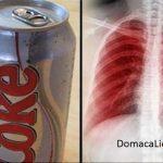 Čo sa stane s vašimi pľúcami, mozgom a obličkami, ak pijete nápoje s umelými sladidlami