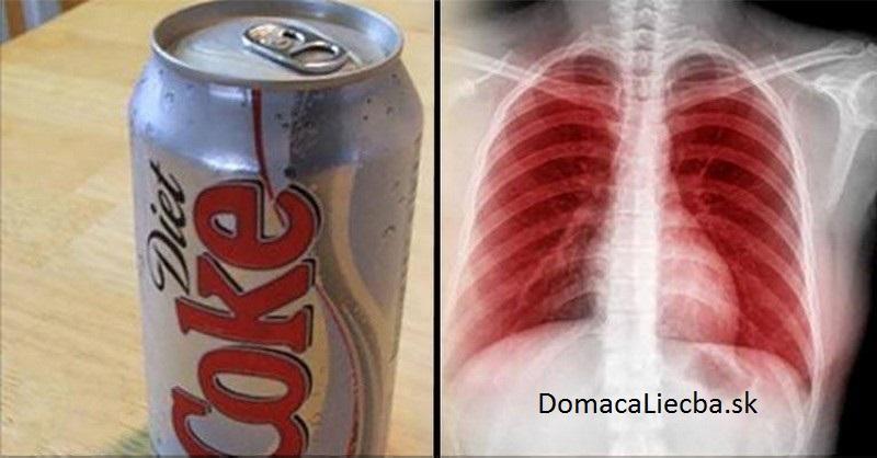 Ako umelé sladidlá potichu ničia vaše pľúca, mozog a obličky