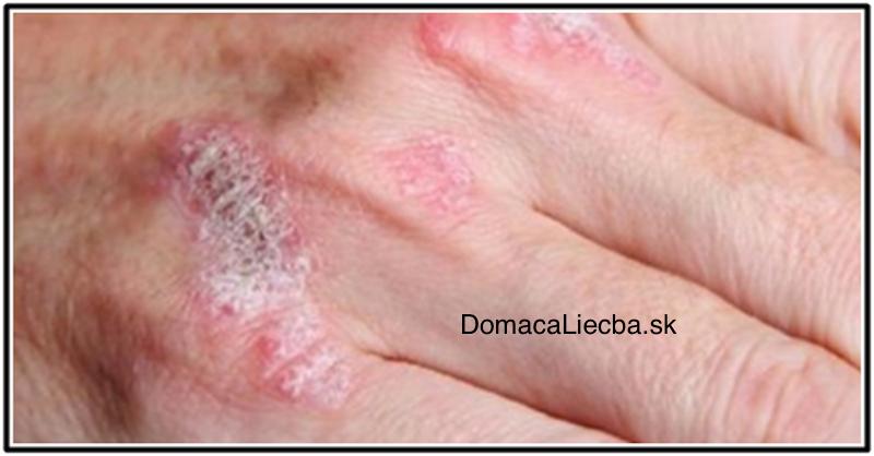 Zázračná rastlinka, čo lieči ekzém, psoriázu, dermatitídu a ďalšie kožné alergie