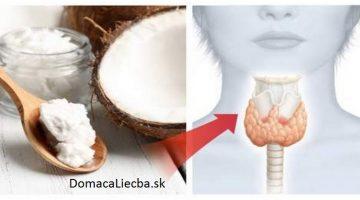 Vedeli ste, že kokosový olej dokáže vyliečiť štítnu žľazu? Stačí, že urobíte toto