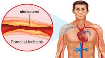 Vedecky potvrdené: Najlepšia potravina na svete na krvný tlak, infarkt, mŕtvicu a cholesterol!