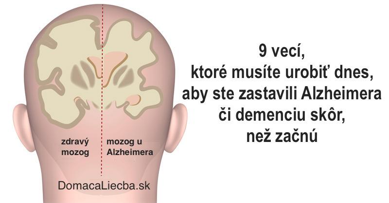 9 vecí, ktoré musíte urobiť dnes, aby ste zastavili Alzheimera či demenciu skôr, než začnú