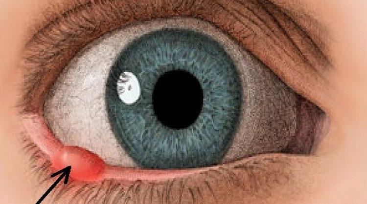 Как лечить ячмень в глазу на нижнем веке в домашних условиях быстро и