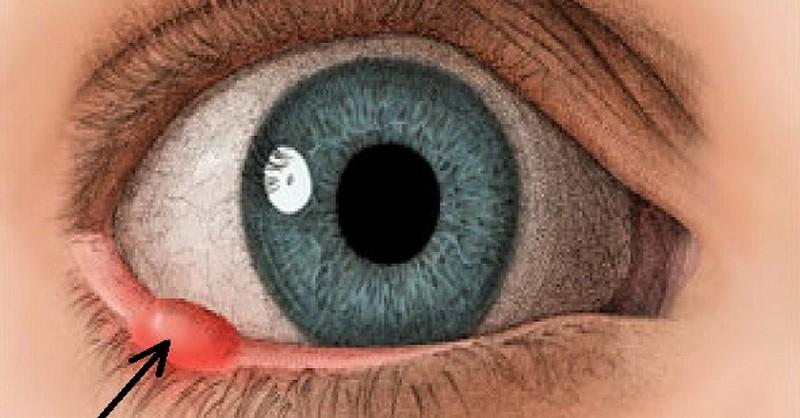 7 účinných domácich receptov ako vyliečiť jačmeň v oku