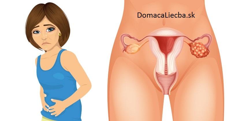 4 skoré príznaky rakoviny vaječníkov, o ktorých potrebuje vedieť každá žena