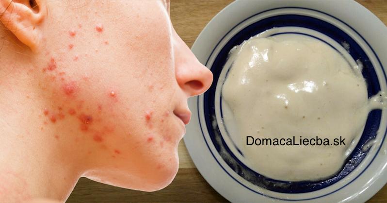 Natrite si toto na tvár a rýchlo odstráňte akné a jazvy po akné