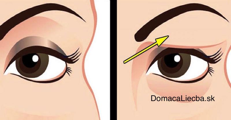 Ako jednoducho odstrániť ovisnuté očné viečka a napnúť uvoľnenú pokožku