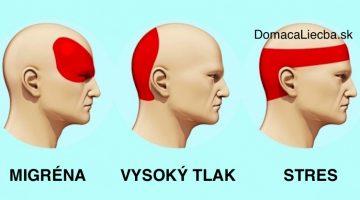 Ako sa zbaviť bolesti hlavy za 5 minút bez užitia tabletiek a liekov