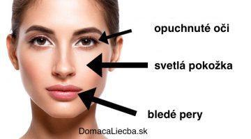 Ako vyčítať nedostatok konkrétnych vitamínov a minerálov z vašej tváre