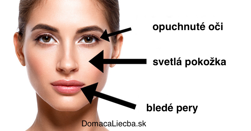 Ako vyčítať z tváre, ktoré vitamíny a minerály chýbajú vášmu telu