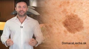 Známy dermatológ odhaľuje, ako odstrániť pigmentové škvrny s týmto jednoduchým trikom