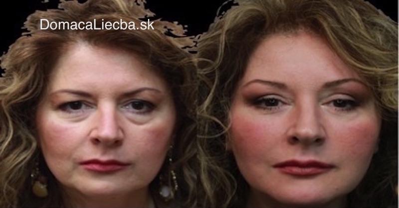 Lepšia než operácia očných viečok: Maska na opuchy a kruhy pod očami