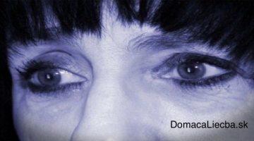 Skoré príznaky Alzheimerovej choroby, ktoré by ste nemali ignorovať