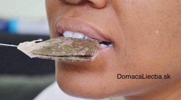 Zázračný trik s čajovým vrecúškom na zuby a ďasná, o ktorom ani váš zubár netuší