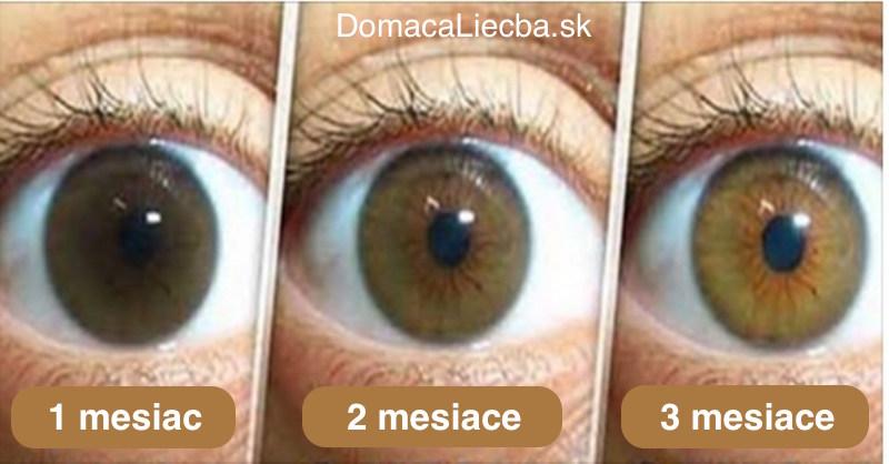 Katarakta (šedý zákal) – príčiny, príznaky a prírodná liečba