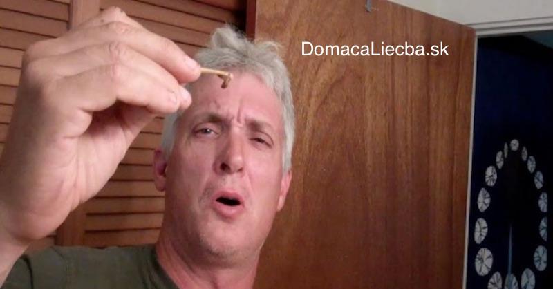 Čistenie uší: Ako odstrániť ušný maz pomocou octu a alkoholu