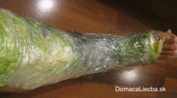 Zabaľte si nohy do kapustových listov na 1 hodinu a sledujte, čo sa stane s vašimi kĺbmi