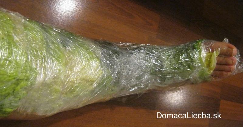 Ako použiť kapustové listy na liečbu bolestí a zápalov kĺbov