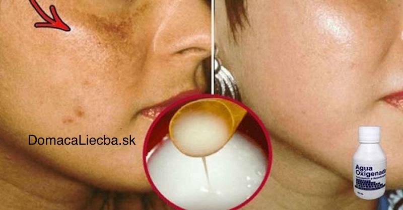 Domáca pleťová maska na pigmentové škvrny a fľaky na tvári