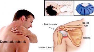 4 domáce spôsoby ako uvoľniť stuhnuté alebo bolestivé rameno