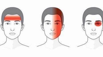 Najlepšie prírodné lieky na 3 druhy bolesti hlavy (tlak, pichanie amigréna)