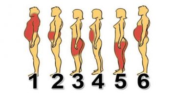 Ako sa najľahšie zbaviť tuku podľa toho, kde je ho na tele najviac