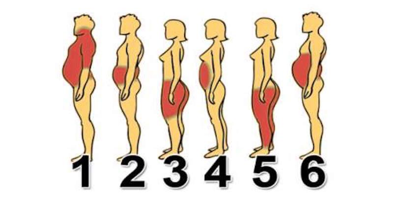 6 druhov telesného tuku a ako sa každého z nich najlepšie zbaviť