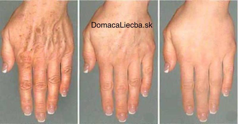 Ako odstrániť vrásky a pigmentové škvrny z pokožky rúk a tváre