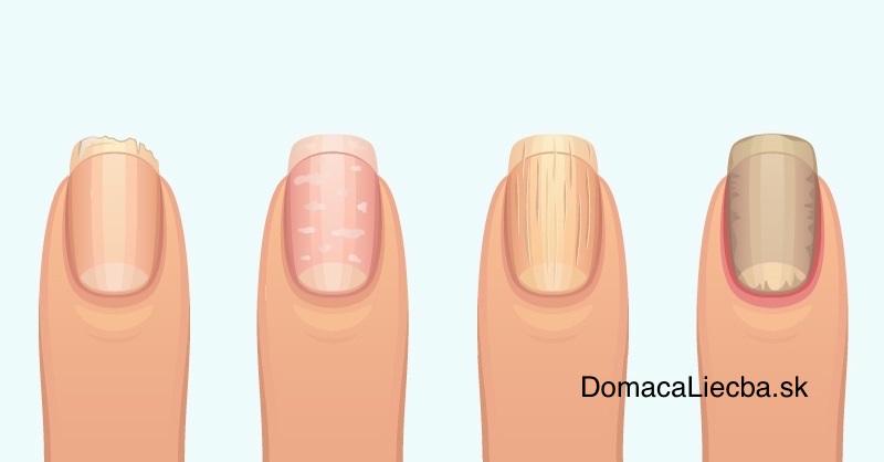 Diagnostika podľa nechtov: Čo znamenajú ryhy, žlté, zhrubnuté či lámavé nechty