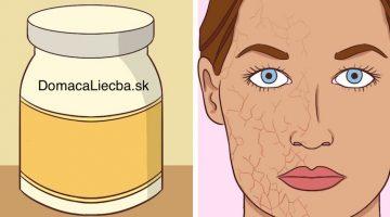 10 prírodných hydratačných látok na suchú a citlivú pokožku