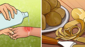6 domácich prípravkov na ľahšie popáleniny, ktoré je dobré poznať