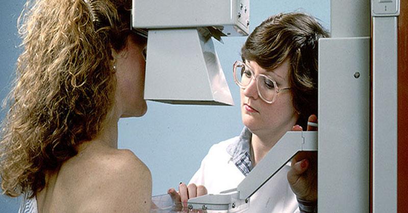 Chirurgovia priznávajú, že mamografia je zastaraná apre ženy škodlivá