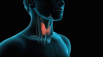 Všetko, čo potrebujete vedieť o ochorení štítnej žľazy: Príznaky, príčiny a liečba