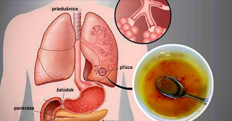 Každý fajčiar (aj bývalý) by mal vyskúšať tento domáci sirup na prečistenie pľúc