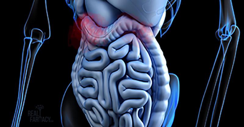 Zrazu má každý tráviace problémy: Tu je dôvod, prečo vaše črevá nefungujú správne