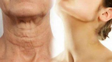 Prezradíme vám jednoduchý spôsob, ako omladiť pokožku na krku a tvári