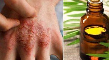 Tento éterický olej úspešne porazí akné, ekzém ipsoriázu