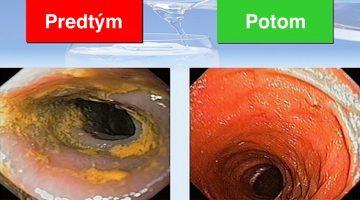 Kedy ste si naposledy urobili detox tela od parazitov, vírusov amykóz?