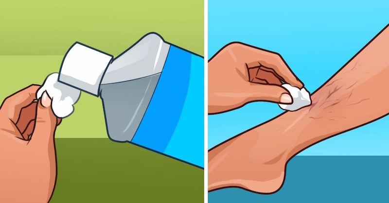 Prekvapí vás, čo dokáže hamamel virgínsky urobiť s vašou pokožkou