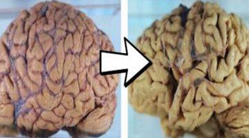Ako s pomocou arašidového masla včas odhaliť Alzheimerovú chorobu